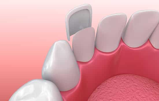 Cosmetic Dentistry Safety Harbor Fl