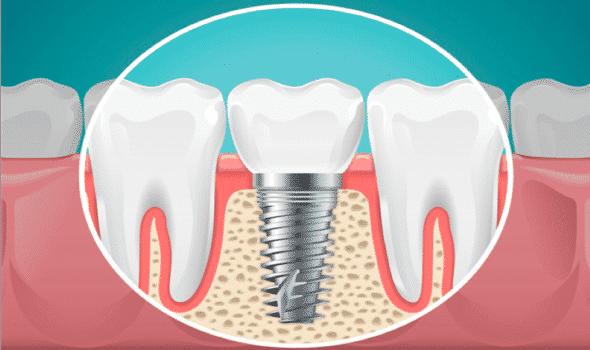 Dental Implants Safety Harbor Fl